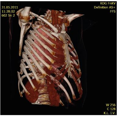 MDCT image of flail chest on the right