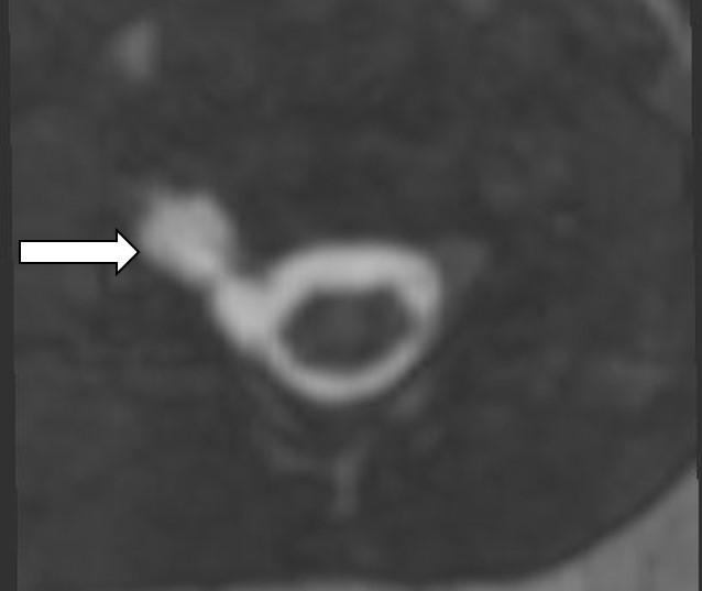 MRI – 3D gradientní echo (ciss), multiplanární rekonstrukce, axiální rovina vúrovni C5–6. Hypersignální kolekce likvoru voblasti foramina C5–6 vpravo odpovídá pseudomeningocele při poranění kořene C6.<br> Fig. 4. MRI – 3D gradient-echo (ciss), multiplanar reformatted image, axial plane. Pseudomeningocele with hyperintense CSF collection at the level of assumed C6 nerve root avulsion.