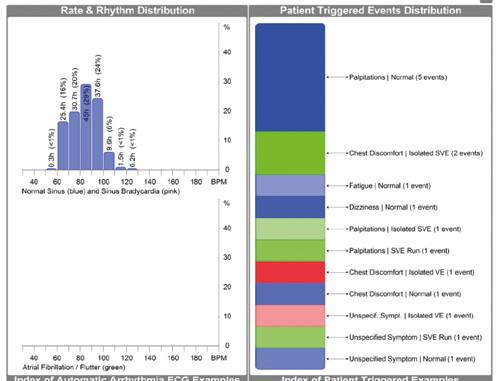 Korelace aktivace symptomatického tlačítka s EKG nálezy