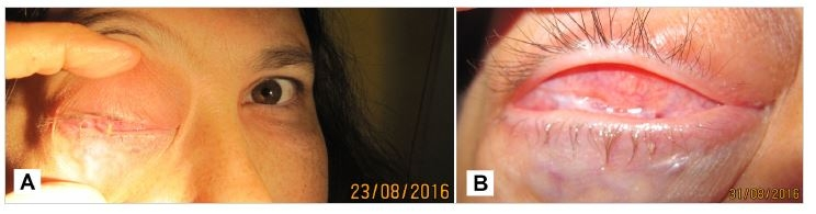 Patient in 8/2016, progression of tumor masses in the right orbit (A), detail of conjunctival sac - conjunctiva with scar, symplepharon