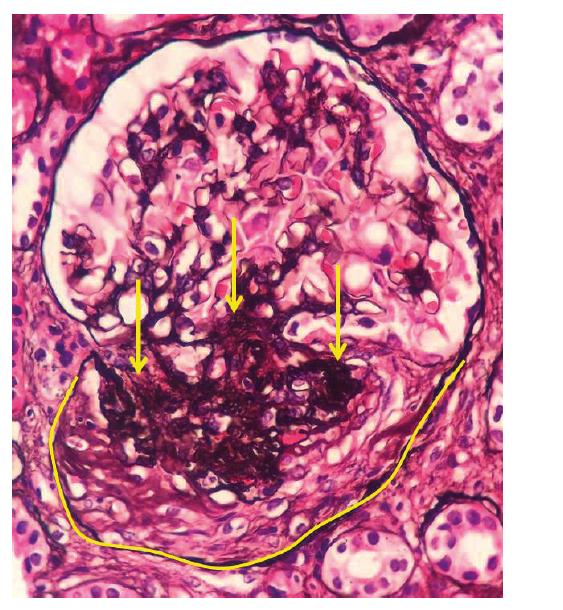 Fotodokumentace druhé renální biopsie provedené v roce 2018