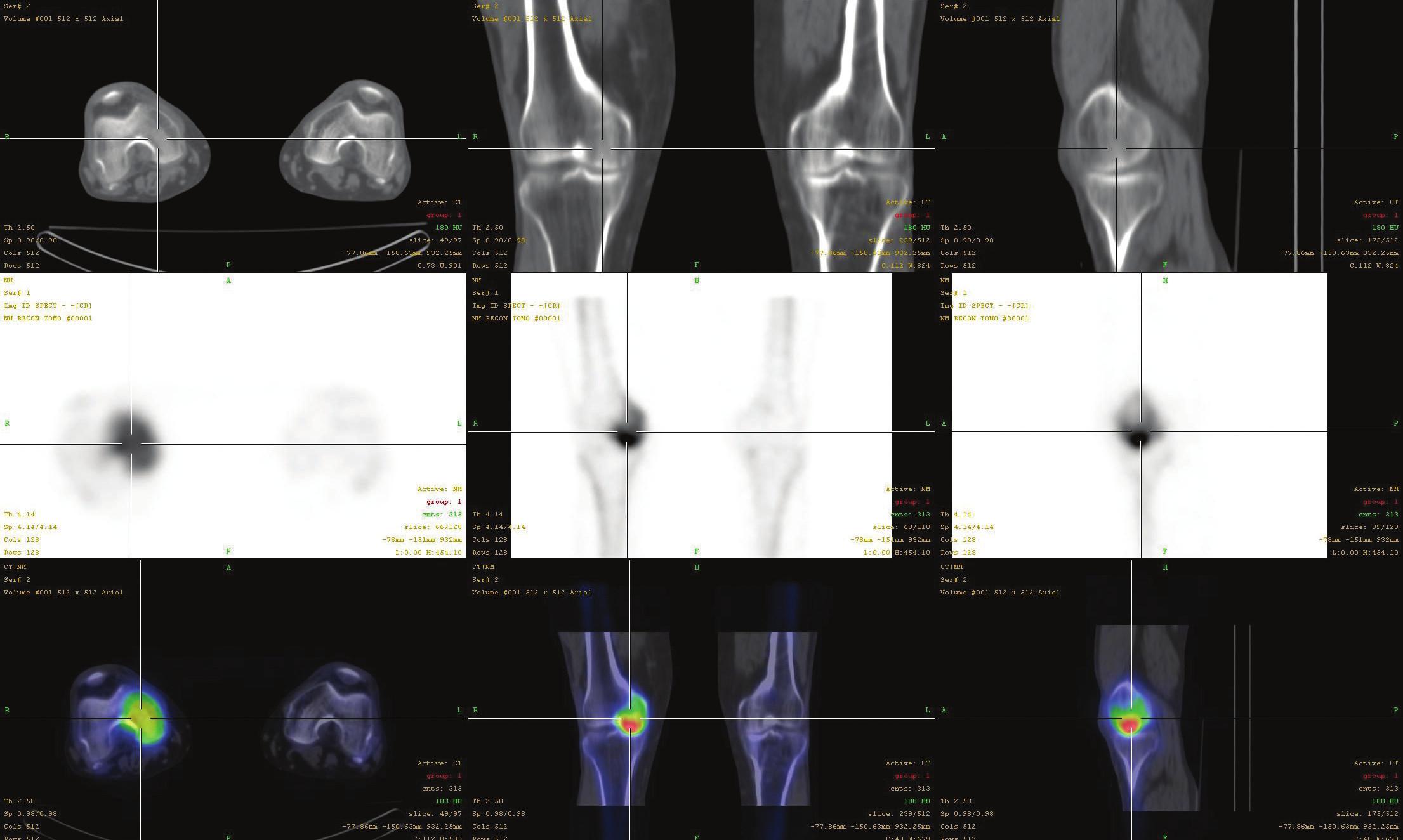 Fúze SPECT/CT obrazu u téhož pacienta s osteonekrózou mediálního kondylu femuru v časném stádiu (I). V horní řadě je obraz z LDCT postupně v transaxiální, koronární a sagitální rovině. Střední řada ukazuje odpovídající SPECT řezy. Dolní řada prezentuje odpovídající fúzované SPECT/CT řezy. Scintigrafický nález je v časném stádiu výrazný, nález na LDCT normální.
