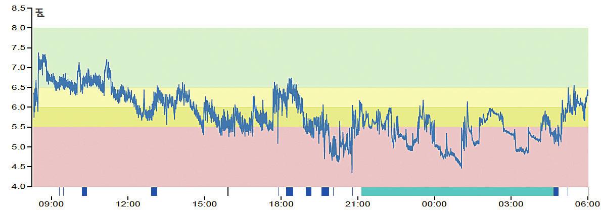 24hodinový záznam orofaryngeálního pH