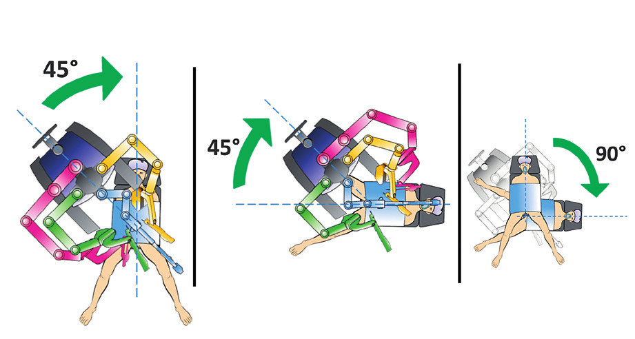 Duální dokování – změna robotického systému (upraveno podle Intuitive Surgical)