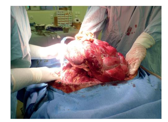 Ventrální kýla<br> Fig. 1: Ventral hernia