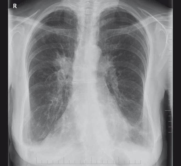 RTG plic před ukončením léčby.