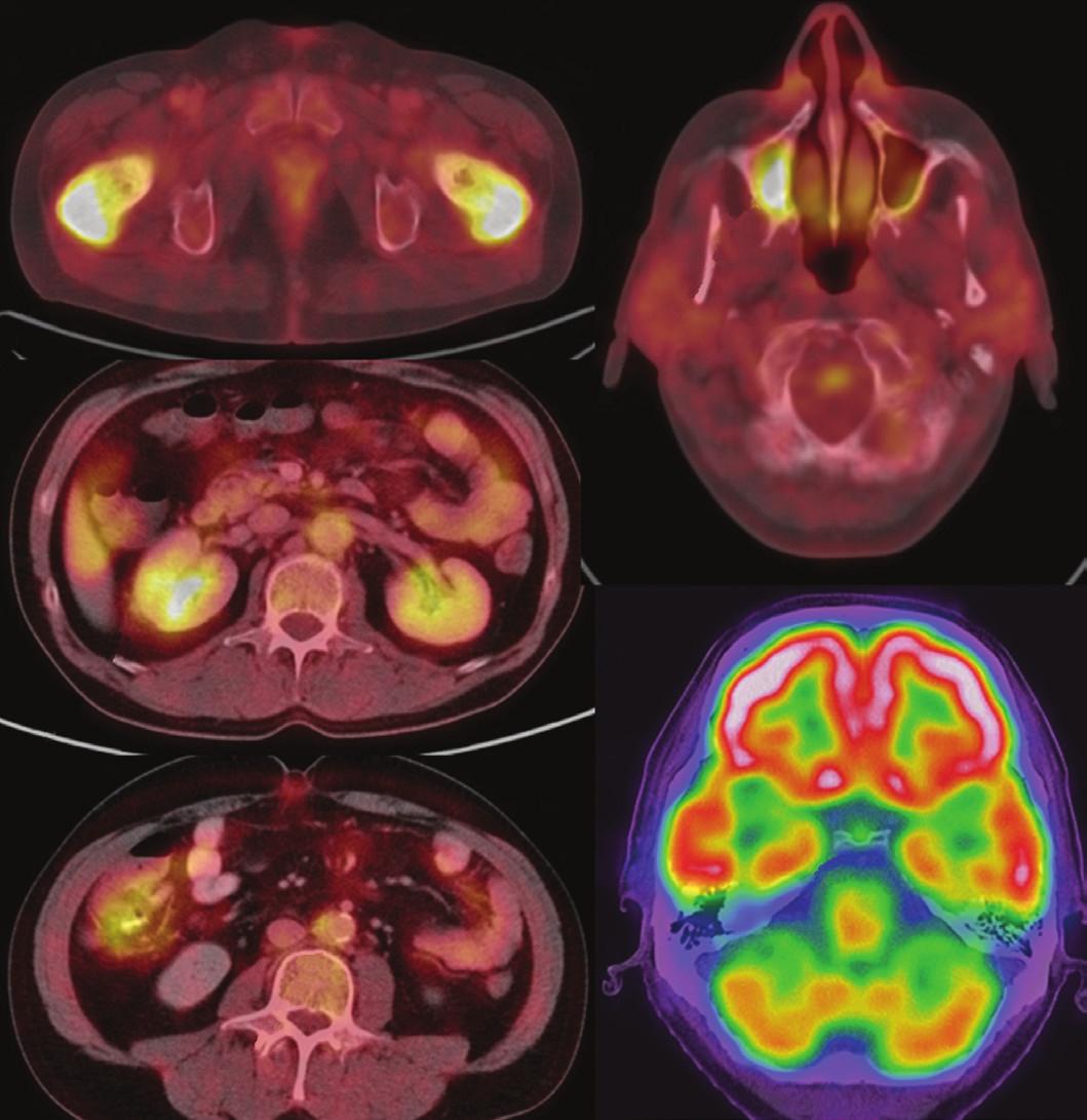 Sumarizace nálezů <sup>18</sup>F-FDG PET/CT vyšetření u pacienta č. 1. Černobílé MIP projekce ukazují jednak rozsah snímání, ale zároveň dobře odráží i rozsah kostního postižení. Fúzované obrazy v axiální rovině pak ukazují detaily kostního, paranasálního, retroperitoneálního, kardiovaskulárního i hypofyzárního postižení