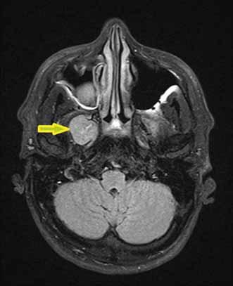 Zobrazenie trigeminálneho schwannómu na MR-T1 váženiu, označené šípkou.<br> Fig. 3. MRI-T1 image of the trigeminal schwannoma marked by an arrow