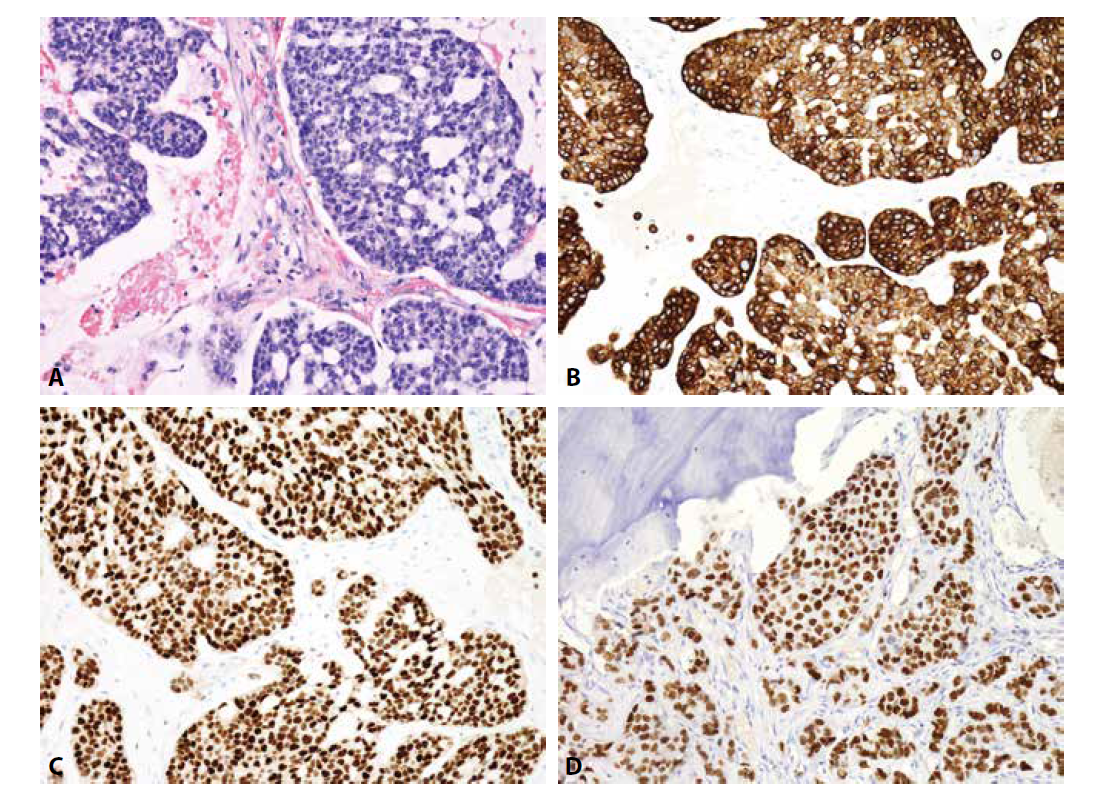 Metastáza karcinomu mammy. A) kribriformní formace (H&E); B) cytoplazmatická exprese CK7, C) jaderná exprese ER, D) jaderná exprese GATA3 (vše zvětšení x200).