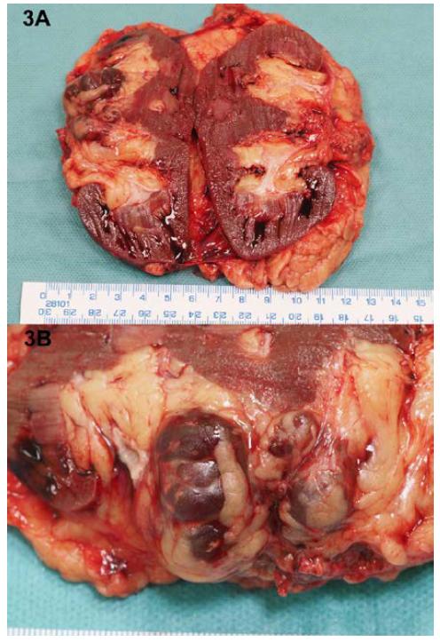 Multicystická léze, lokalizovaná v renálním sinu, makroskopicky bez jednoznačně vyjádřené solidní složky; A – přehled, B – detail léze<br> Fig. 3. Multicystic lesion localized in renal sinus, macroscopically without solid areas; A – overview, B – detail