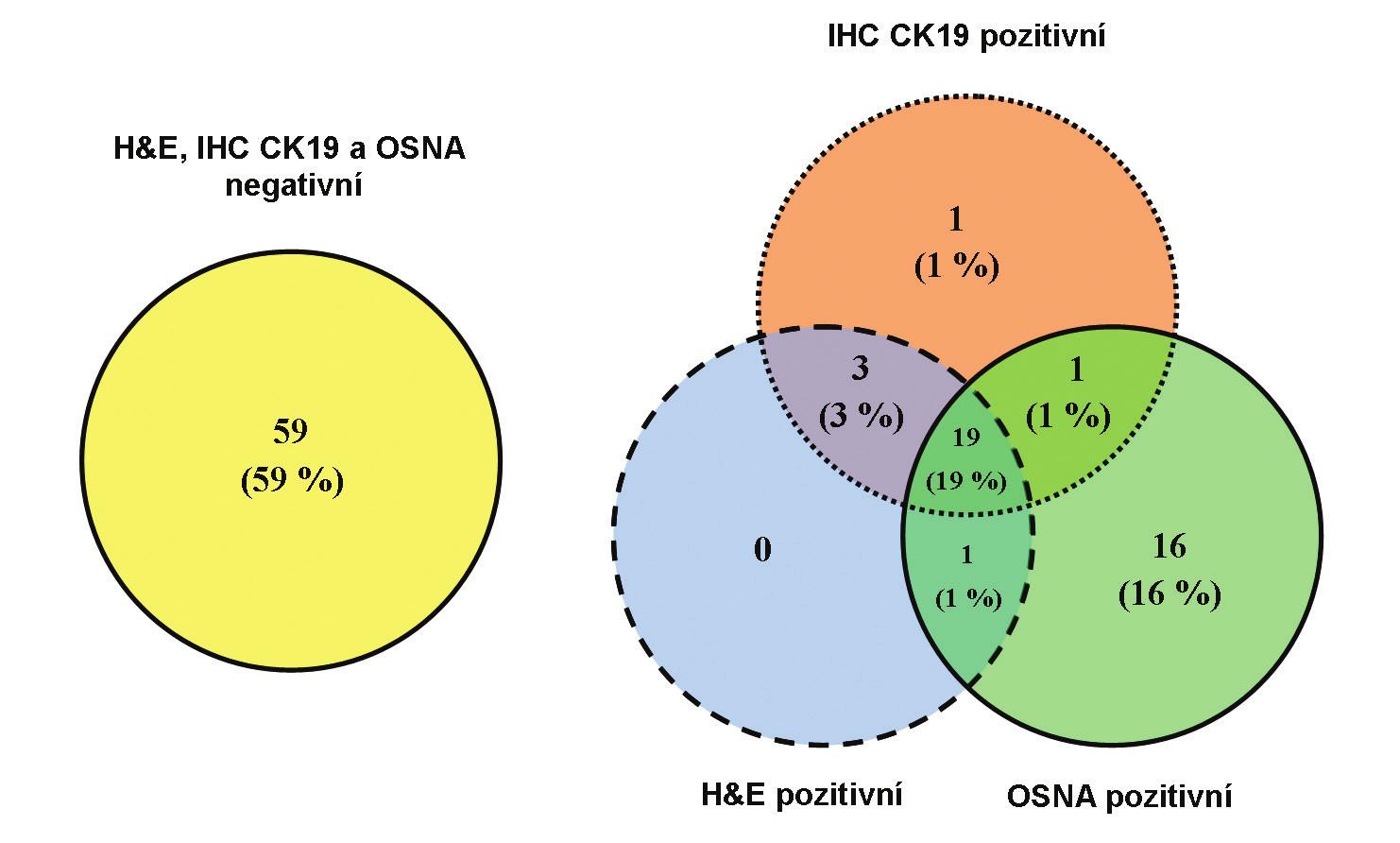 Porovnání shody výsledků vyšetření pacientů metodami H&E, IHC CK19 a OSNA pomocí Vennových diagramů<br> Graph 1: Comparison of identical examination results of patients using the H&E, IHC CK19 and OSNA methods by Venn diagrams