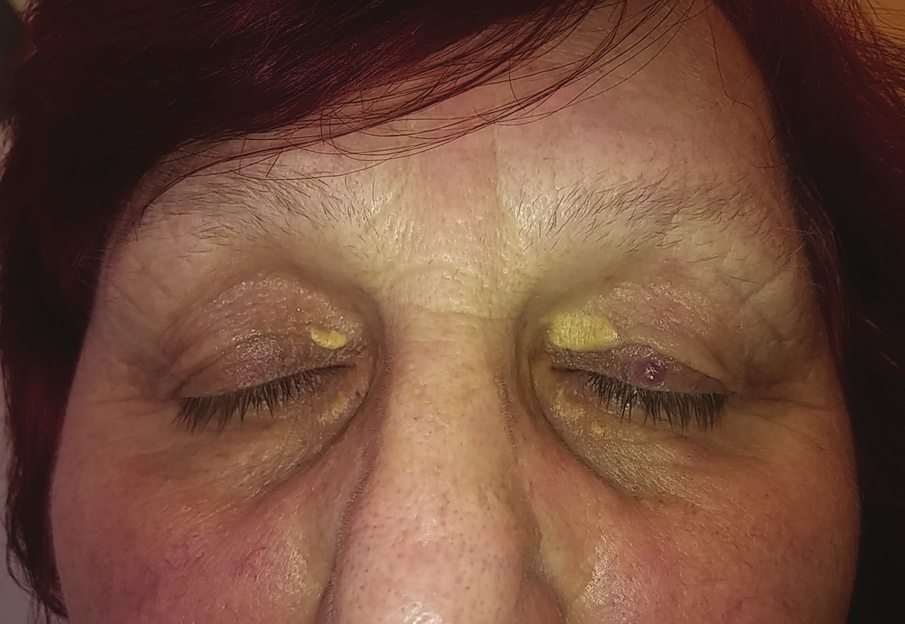 Xanthelasma palpebrarum of the upper and lower eyelid of both eyes (from the archive of the Preventive Cardiology Centre, 3rd Internal Clinic, General University Hospital Prague)