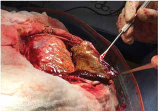 Resekce septovaného, tuhého chronického hematomu, který nebylo možné vypustit z návrtu<br> Fig. 3: Resection of multilobulated chronic subdural hematoma through a craniotomy, which was not possible to evacuate through a burr hole