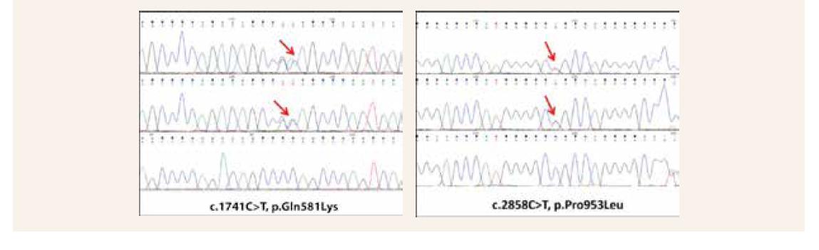 Segregačná analýza identifikovaných genetických variantov prostredníctvom Sangerovho sekvenovania (Chromas). Variant c.1741C>T zdedila probandka po otcovi a variant c.2858C>T po matke