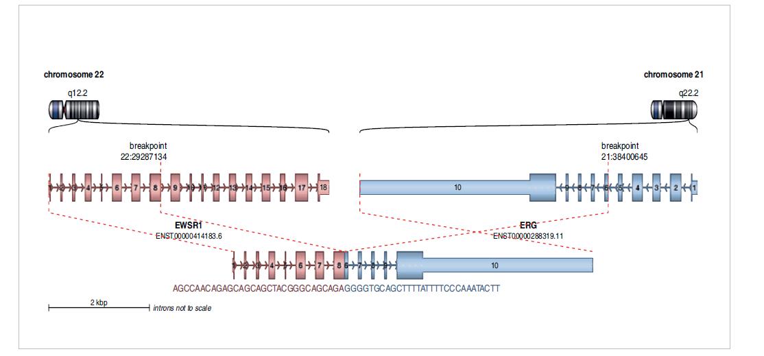 Diagnostikovaný fúzní gen EWSR1-ERG u dospělého pacienta s diagnózou Ewingova sarkomu. Analýza pomocí Arriba software.