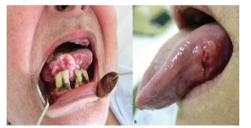 a – pacient s exofyticky rastúcim karcinómom jazyka (jazyk bol palpačně zatuhnutý a mal obmedzenú hybnosť), b – iná pacientka s karcinómom jazyka, ktorý sa klinicky prejavil ako nehojaca sa ulcerácia so zatuhnutou spodinou