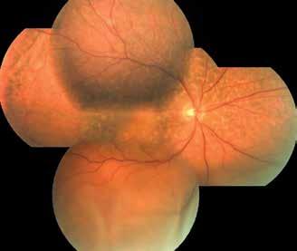 Fotografie očního pozadí pravého oka po operaci hluboké zadní sklerotomie, duben 2018. Vstřebaná ablace choroidey, perzistující serózní odchlípení sítnice a leopardí skvrny