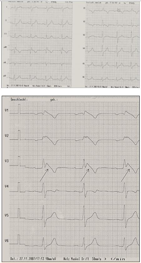 Syndrom Brugadových. <br> 5A. Nativní EKG křivka <br> 5B.  Po provokaci ajmalinem: vznik Brugada obrazu typu I (šipky)