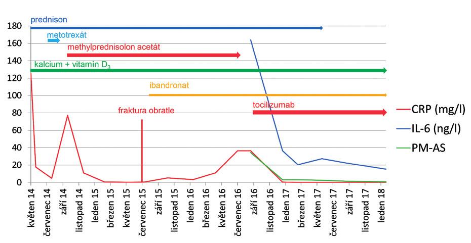 Průběh revmatické polymyalgie u 52leté pacientky od stanovení diagnózy v květnu 2014. Graf ukazuje vývoj hladiny CRP a IL-6 v průběhu léčby onemocnění a od září 2016 také vývoj skóre PMR-AS. Barevné šipky označuji průběh léčby jednotlivými léky. V červenci 2015 byl stav komplikován rozvojem osteoporotické fraktury prvního bederního obratle. Z důvodu relapsu onemocnění po snížení dávky prednisonu na 5 mg denně a ukončení léčby methylprednisolonem acetátem byla v září 2016 zahájena terapie tocilizumabem v dávce 8 mg/ kg tělesné hmotnosti i.v. á 4 týdny.