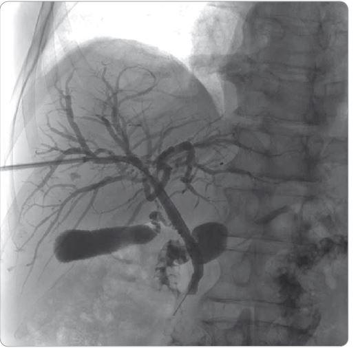 Cholangiografie přes perkutánní transhepatický drén po léčbě kortikosteroidy.