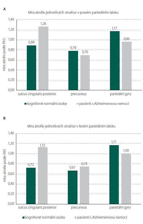 Porovnání míry atrofi e jednotlivých oblastí (A) pravého a (B) levého parietálního laloku mezi kognitivně normálními osobami a pacienty s mírnou demencí způsobenou Alzheimerovou nemocí s pozdním začátkem. Mezi oběma skupinami nebyl prokazatelný rozdíl v atrofii žádné ze struktur hodnocených vizuální škálou PAS (Parietální atrofický skór).<br> Fig. 2. Comparison of atrophy in individual regions (A) of the right and (B) the left parietal lobe between cognitively normal people and patients with mild dementia due to late-onset Alzheimer's disease. We did not fi nd any difference in atrophy between the two groups in any of the structures evaluated by the PAS (Parietal Atrophy Score) visual scale.