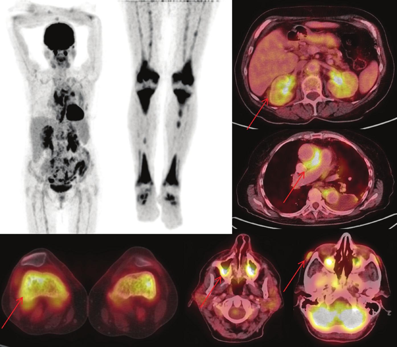 (vlevo) Sumarizace nálezů <sup>18</sup>F-FDG PET/CT vyšetření u pacienta č. 3. Černobílé MIP projekce ukazují rozsah snímání, odráží i rozsah kostního postižení. Fúzované obrazy pak ukazují detaily retroperitoneálního, kardiovaskulárního, kostního, paranasálního, orbitálního a kožního postižení.