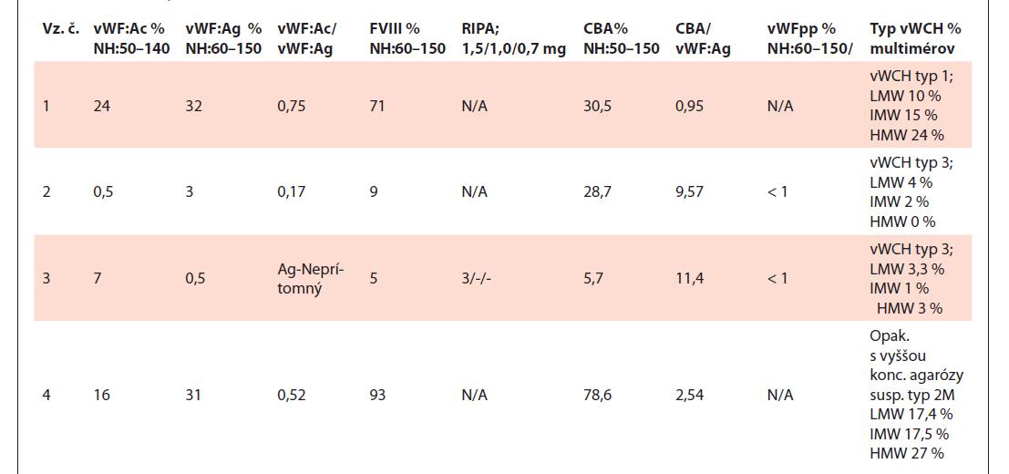 Tabuľka výsledkov testov vzoriek č. 1–4.