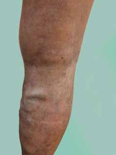Vena saphena parva – masivní varixy, pozdní záchyt