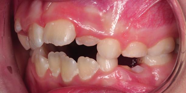 Obr. 5b Zúžená horní čelist, tendence k frontálně otevřenému skusu – boční pohled<br> Fig. 5b Narrowing of the upper jaw – tendency to open bite – side view