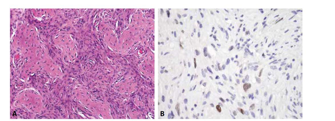 Low-grade centrální osteosarkom. A) oproti fibrózní dysplázii je tumor celulárnější (H&E); B) sporadická exprese MDM2 v oválných buňkách (zvětšení x 200).