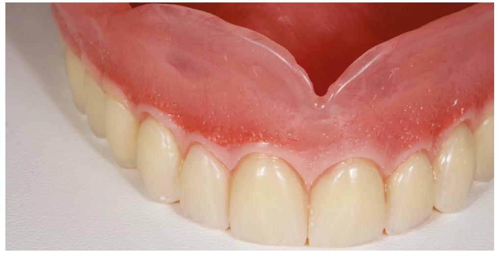 Zhotovená horní totální náhrada<br> Fig. 4 The upper complete denture
