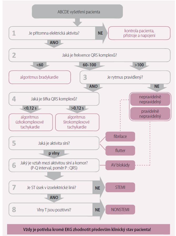 Schéma 1. Detailní podoba EKG diagnostiky v osmi krocích.