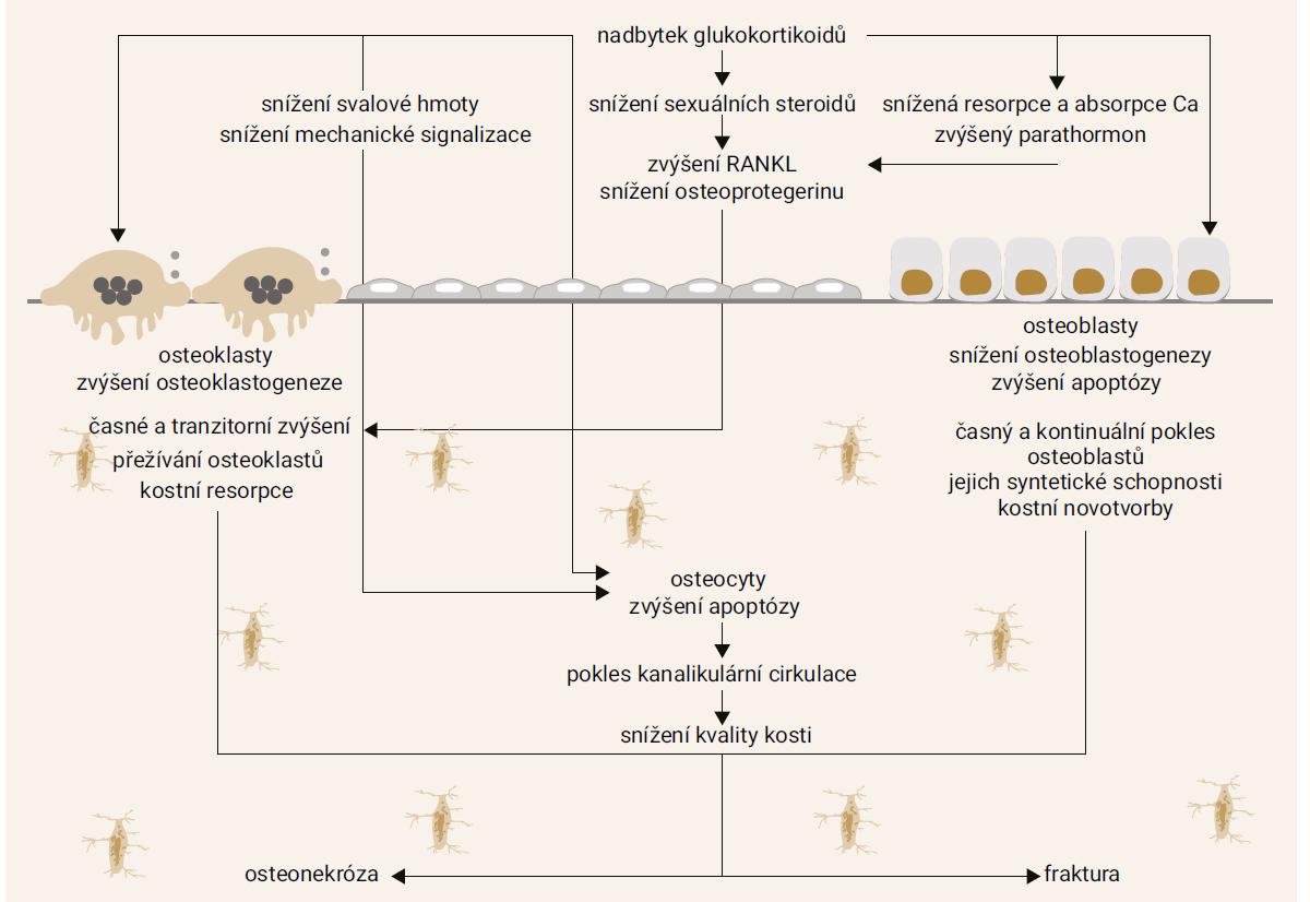 Schéma: Mechanizmy glukokortikoidy indukované osteoporózy. Upraveno podle [28]