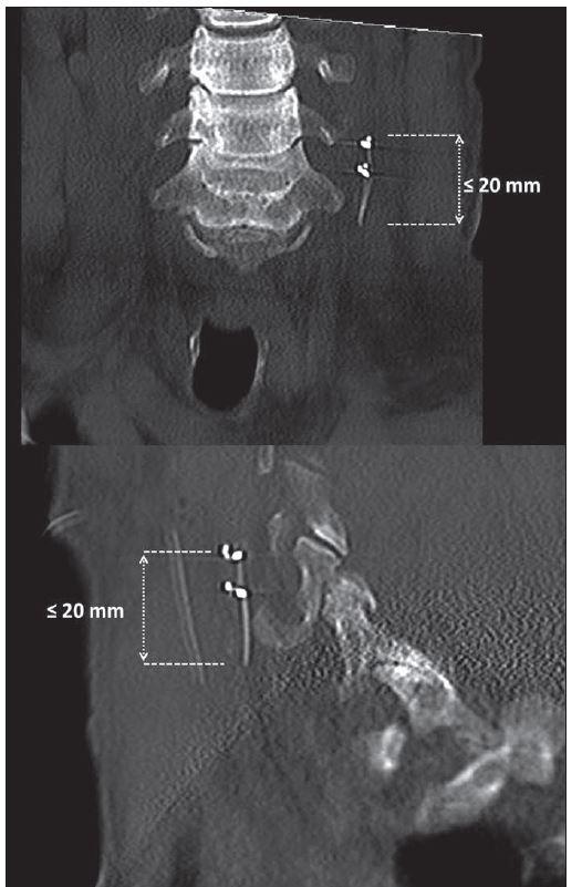 Pooperační CT s ponechaným zbytkem elektrody na vagovém nervu.<br> Fig. 5. Postoperative CT with the remainder of the electrode on the vagal nerve.