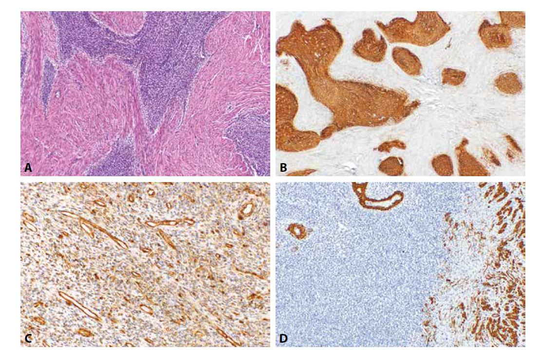 Low grade endometriální stromální sarkom. Nádorové struktury s jazykovitou infiltrací myometria (1A, HE, 100x). Nádorové buňky jsou pozitivní při průkazu CD10 (1B, 40x), IFITM1 (2C, 200x) a negativní při průkazu h-caldesmonu (1D, 100x).