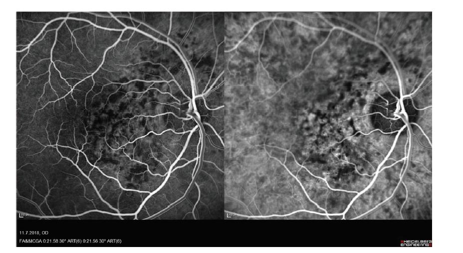 Snímek fluorescenční angiografie a angiografie s indocyaninovou zelení hemangiomu cévnatky