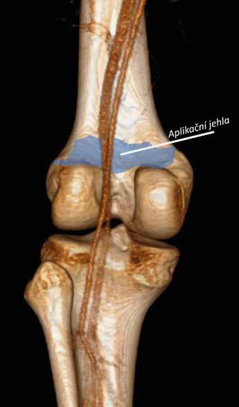 Simulovaný IPACK blok. CT kolenního kloubu pohled zezadu. Na 3D rekonstrukci se zachovalými popliteálními cévami je modrou barvou znázorněna oblast distribuce lokálního anestetika po IPACK bloku