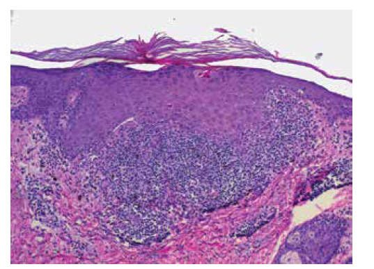Histologie lichen planus (HE 100x)