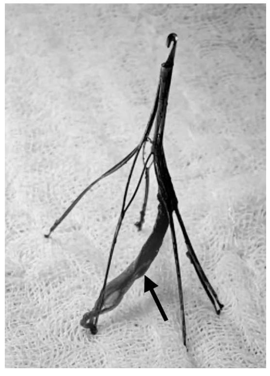 Vyjmutý kavální filtr, na jeho nožičce je patrná trabekula ze stěny dolní duté žíly, která zabránila jeho perkutánní extrakci