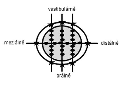 Způsob rozříznutí otisků při standardní preparaci (SP) a preparaci s okluzním isthmem (OP): ve vestibuloorálním směru třikrát a v meziodistálním směru jedenkrát. Na každém řezu bylo provedeno měření na šesti místech na okluzní ploše (tečky), dvou místech na okrajích (hvězdičky) a dvou místech na axiálních stěnách (nezakresleno). Fig. 3 Replicas sectioning plan for standard preparation design (SP) and preparation design with occlusal isthmus (OP): in the bucco-lingual direction (three times) and in the mesiodistal direction (ones). With measuring points occlusal (dots, six points each slice) marginal (stars, two points each slice) and axial (not marked, two points each slice)