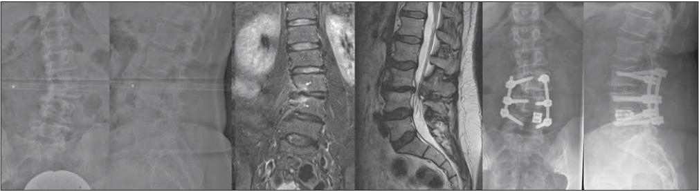55-ročná pacientka s radikulárnymi bolesťami L3 a neurogénnymi klaudikáciami, grafi cký nález jednostrannej subartikulárnej stenózy a foraminálnej stenózy L3/4 vpravo, po distrakcii v segmente L4/5 vľavo expandibilnou PLIF klietkou, dekompresiou a XLIF L3/4 významná korekcia deformity, subj. zmiernenie bolestivého syndrómu.<br> Fig. 1. 55-year old female patient with radicular pain in dermatomes L3 with neurogenic claudication, and with imaging fi ndings of unilateral subarticular stenosis and right foraminal stenosis in segment L3/4. After distraction of segment L4/5 on the left with an expandible PLIF cage, decompression and XLIF of L3/4 was performed with signifi cant correction of deformity and subjective relief of the pain syndrome.