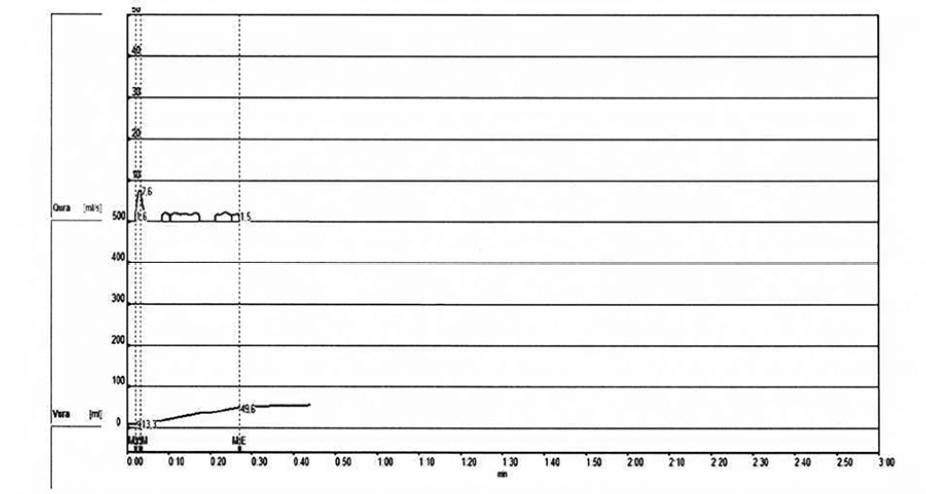 Uroflowmetrie – malý objem močení<br> Fig. 1. Uroflowmetry – small volume of urine