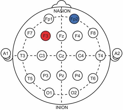 Znázornění protokolu k terapii deprese v systému 10–20. Anoda (červená) nad levým dorzolaterálním prefrontálním kortexem, katoda (modrá) v orbitofrontální oblasti.<br> Fig. 5. 10–20 representations of the therapeutic protocol for depression treatment. Anode (red) over the left dorsolateral prefrontal cortex, cathode (blue) over the orbitofrontal area.