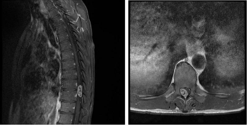 Obr. 12 A, B. Spinálny neurofibróm Th9–10, MR vyšetrenie: A. sagitálny rez v T1W sekvencii s podaním kontrastnej látky; B. transverzálny rez v T1W sekvencii s podaním kontrastnej látky [123].<br> Fig. 12 A, B. Spinal neurofibroma at Th9–10, MR image: A. post-contrast sagittal T1W sequence; B. post-contrast axial T1W sequence [123].