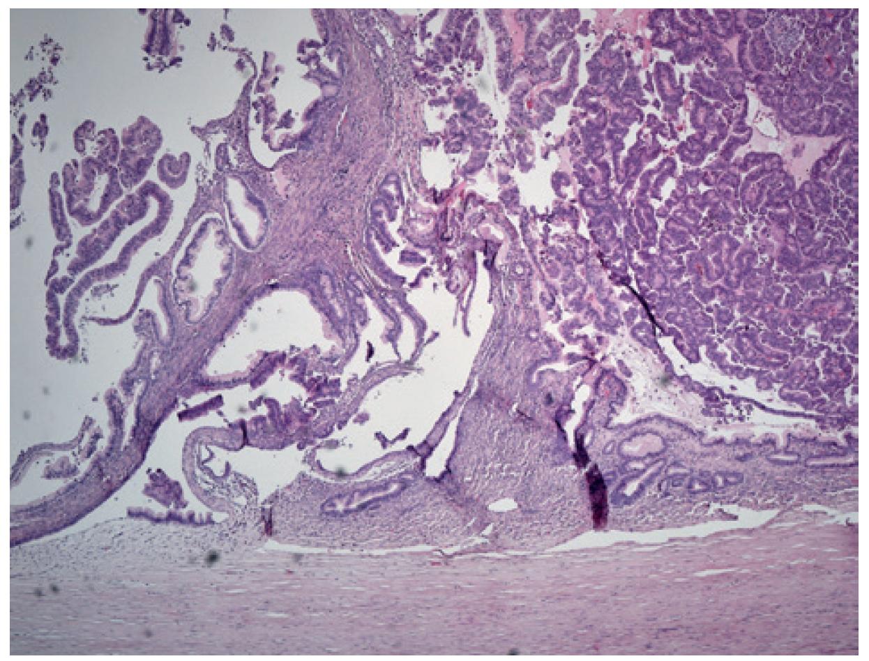 Mikroskopický vzhled zbytků adenomu s tubulární úpravou (vlevo) a maligní transformace s papilární úpravou (vpra-vo) se silným vazivovým pouzdrem <br> Barvení HE <br> Fig.5: Microscopic aspect of the residual adenoma with tubular form (left) and malignant transformation with papillary form (right) with solid fibrous capsule <br> Staining HE.