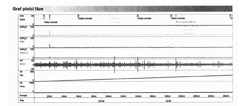 Video-urodynamické vyšetření – plnící cystometrie ukazující klidný detruzor během plnění<br> Fig. 2. Video-urodynamic examination – filling cystometry showing a quiet detrusor during filling