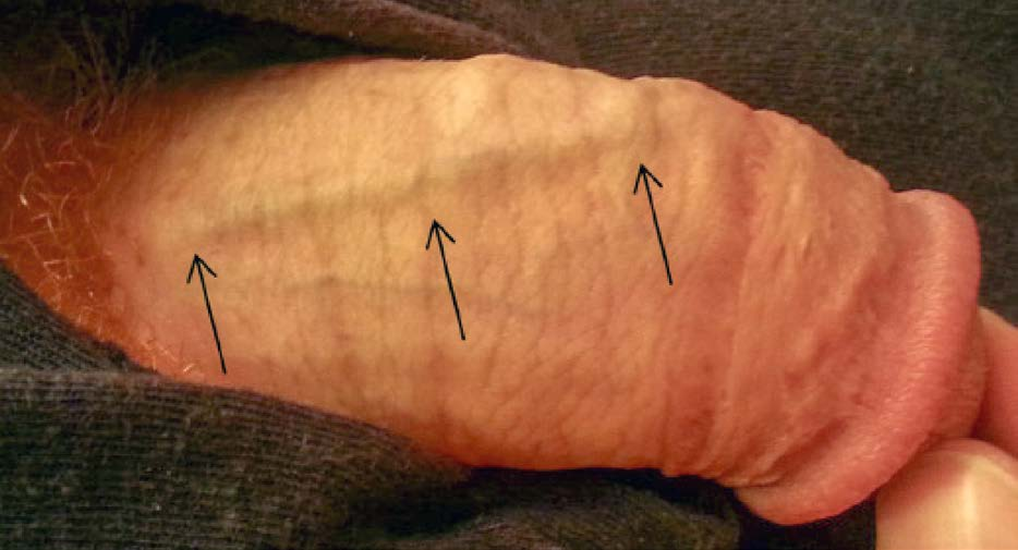 Tuhý pruh v průběhu dorzální žíly – Ilustrativní foto – zdroj (9)<br> Fig. 1. Palpable rigid stripe affecting the dorsal vein