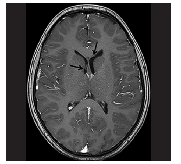 MRI pacientky s LGG s prokázaným fúzním genem BCR1-NTRK3. Na MRI mozku se zaměřením na zrakovou dráhu byl nález solidní patologické expanze v oblasti optického chiasmatu s propagací suprachiasmaticky, ventrálně do oblasti baze frontálního laloku vlevo a dorzálně do oblasti mediální části temporálního laloku a insuly vpravo.