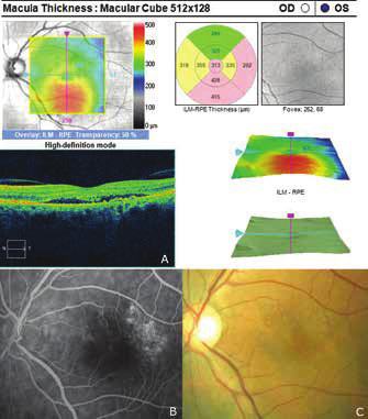 Recurrence of central serous chorioretinopathy after 5 years