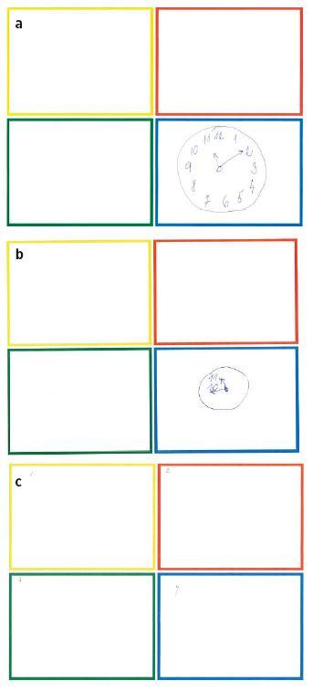 Obr. 1a–c Příklady výsledků testu kreslení hodin (Clock-in-the-Box)<br> a) Normální výsledek, kresba hodnocena plným počtem 8 bodů, 70letá žena, karotická endarterektomie v krčním bloku, b) výsledek svědčící pro možnou kognitivní dysfunkci, kresba hodnocena 4 body z 8, 67letý muž, opakovaná tepenná rekonstrukce dolních končetin, epidurální anestezie, c) nejhorší zaznamenaný výsledek, skóre 0 bodů, 76letá žena, rekonstrukce tepen dolních končetin v epidurální anestezii